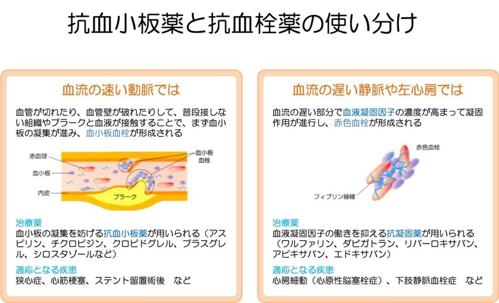 抗凝固薬と抗血小板薬の使い分け